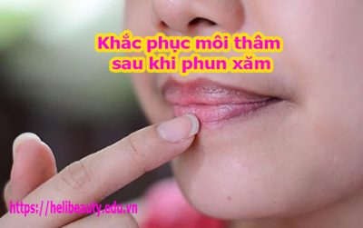 Khắc phục môi thâm sau khi phun xăm